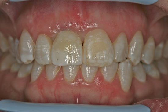 Image following cementation of the crown to the abutment.
