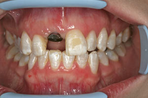Implant in situ with healing abutment - the patient wears a temporary denture over the abutment.